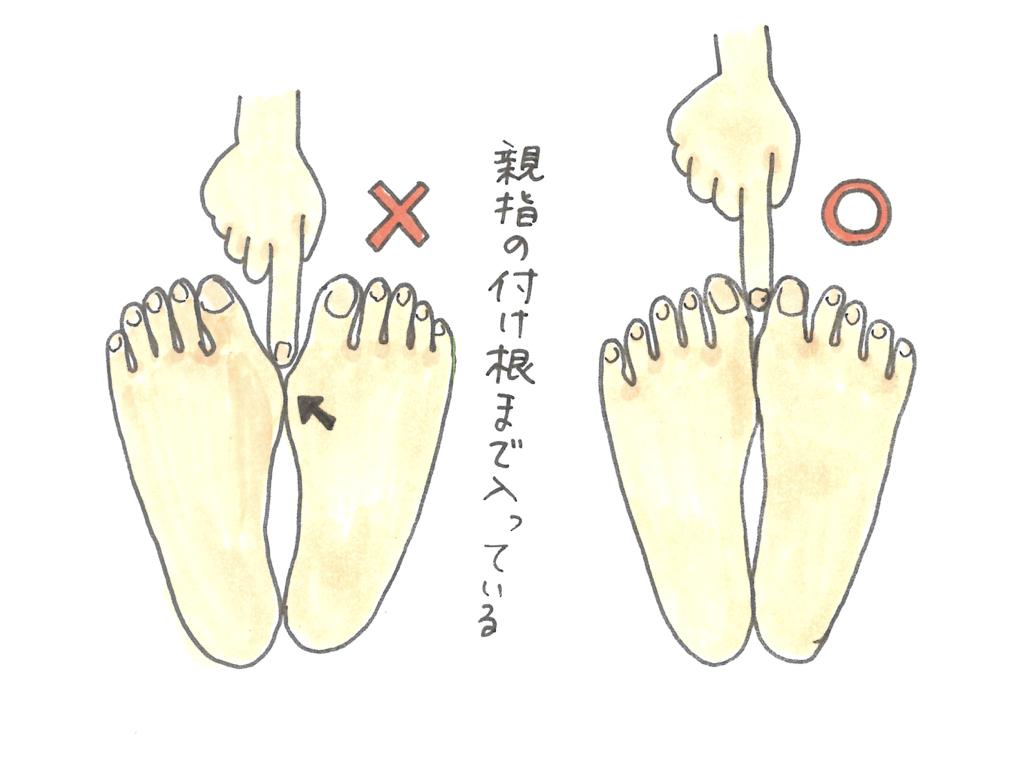 外反母趾の図