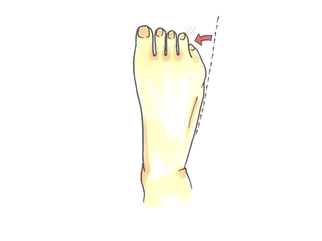 内反小趾の絵
