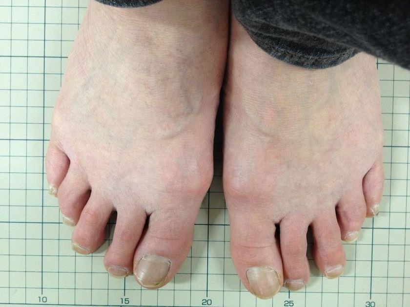 50代女性外反母趾写真 1