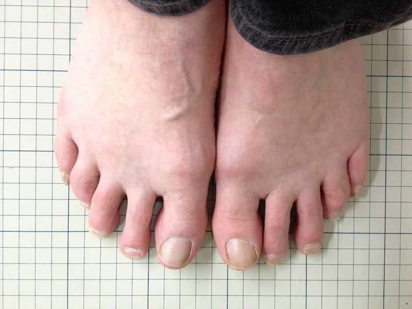 50代女性外反母趾写真 2